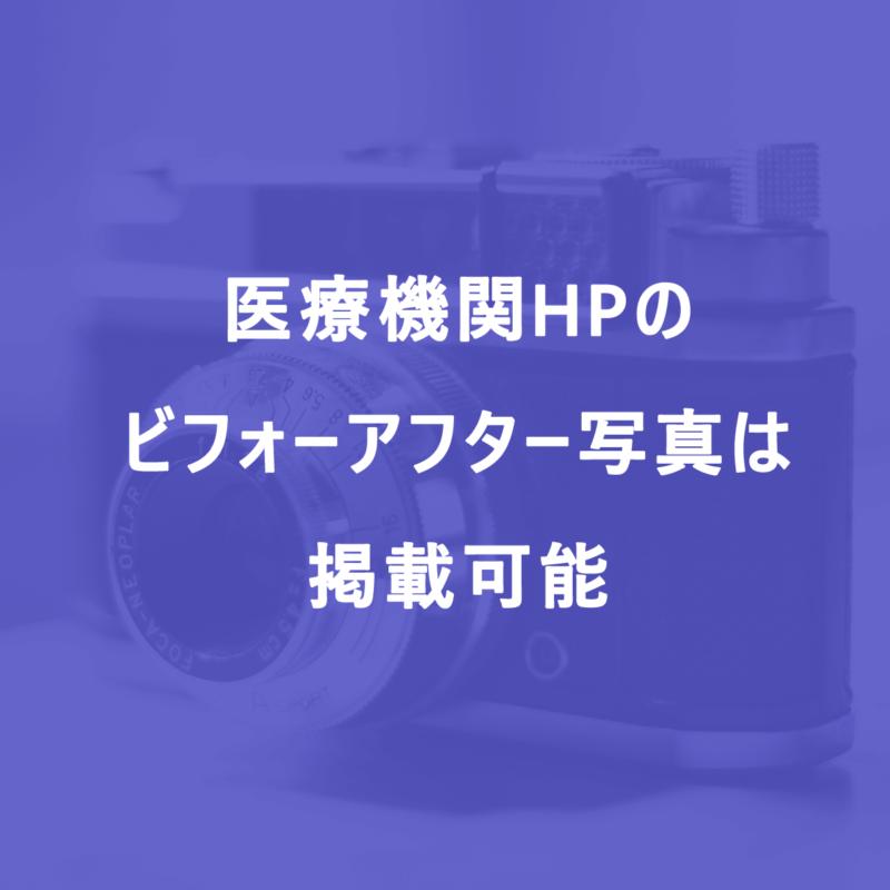 美容医療HPのビフォーアフター写真は掲載可能 - 2018年6月1日から|医療広告ガイドラインより